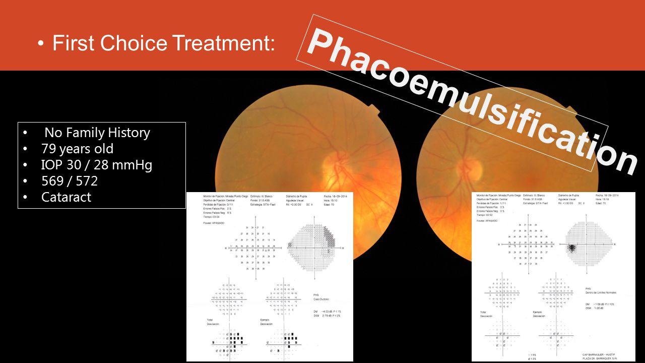 First Choice Treatment: No Family History 79 years old IOP 30 / 28 mmHg 569 / 572 Cataract Phacoemulsification
