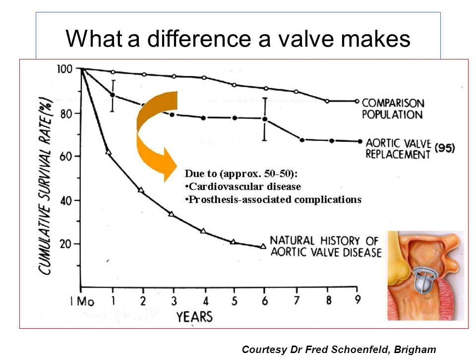 What a difference a valve makes Graph courtesy of F Schoen Courtesy Dr Fred Schoenfeld, Brigham