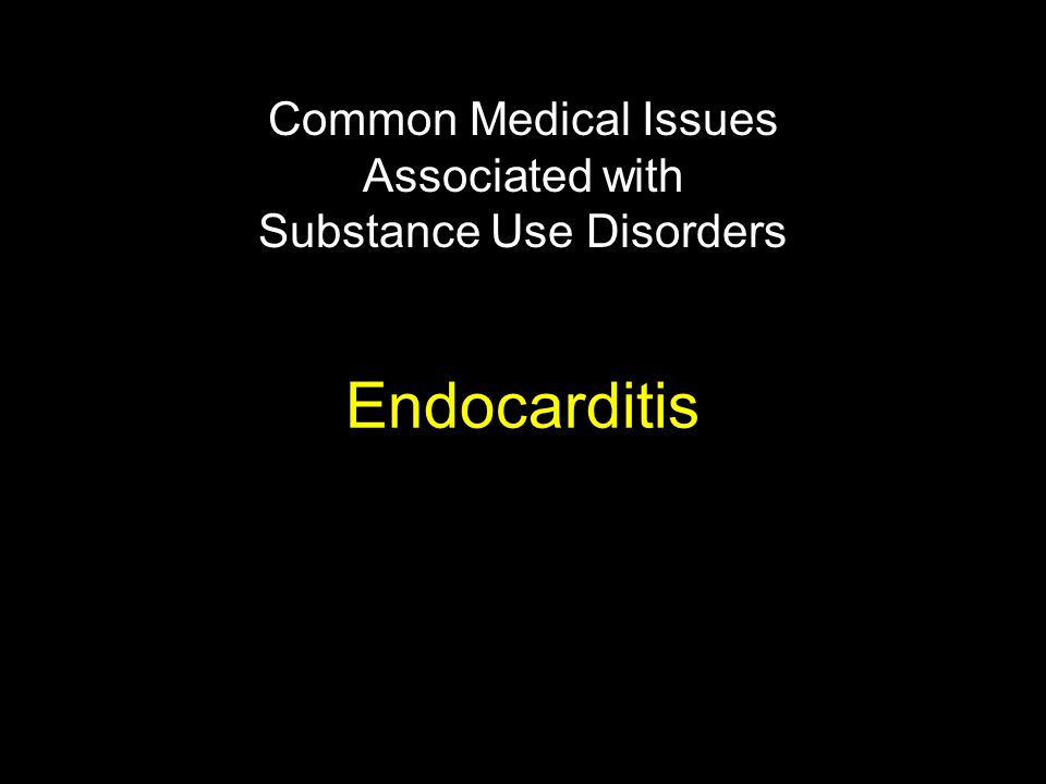 Endocarditis Common Medical Issues Associated with Substance Use Disorders