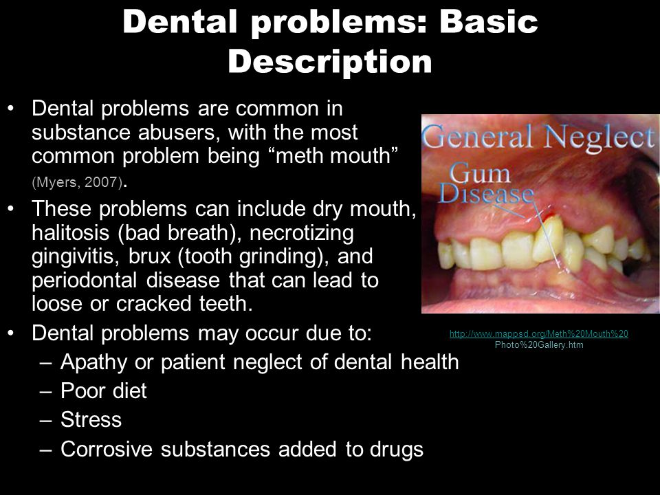 Dental problems: Basic Description Dental problems are common in substance abusers, with the most common problem being meth mouth (Myers, 2007).