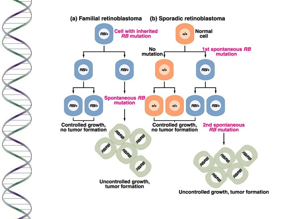 Most cancers require sequential somatic mutation of several genes n A well-studied example is colon cancer, studied by Vogelstein and Kinzler.