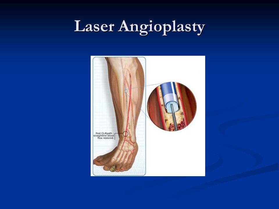 Laser Angioplasty