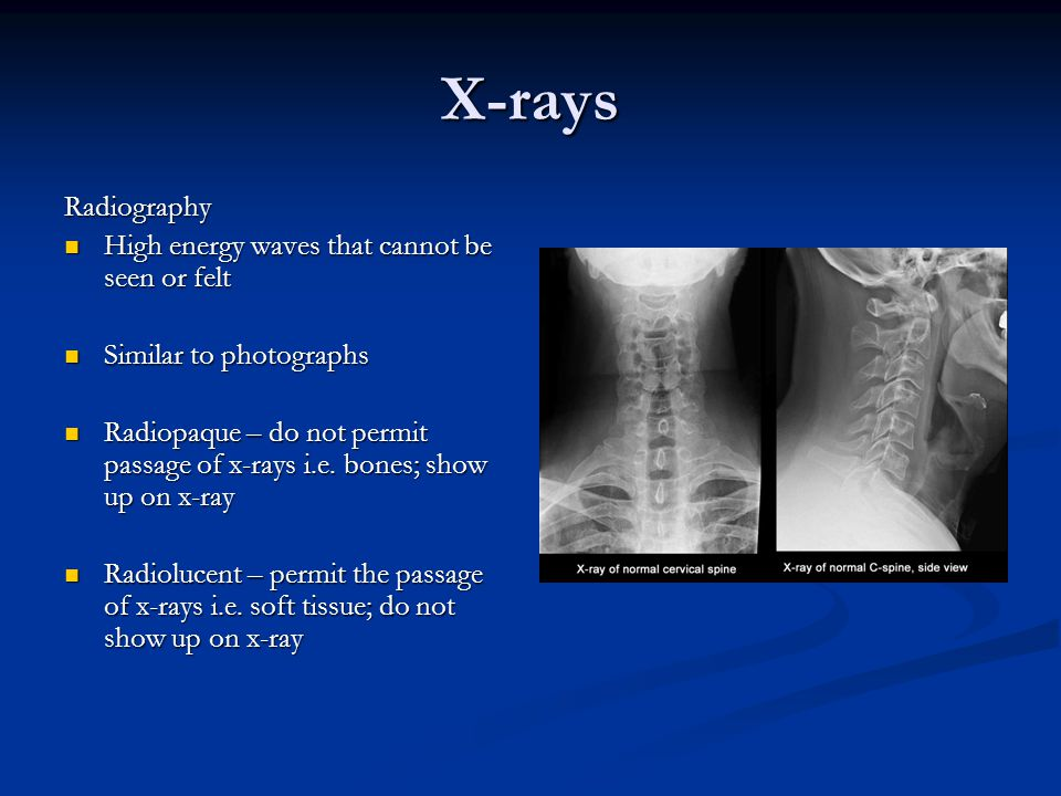 X-rays Radiography High energy waves that cannot be seen or felt High energy waves that cannot be seen or felt Similar to photographs Similar to photo