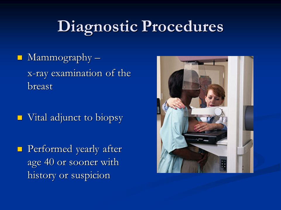 Diagnostic Procedures Mammography – Mammography – x-ray examination of the breast Vital adjunct to biopsy Vital adjunct to biopsy Performed yearly aft