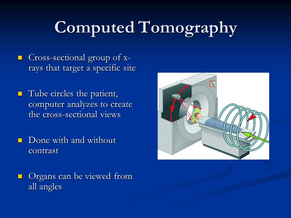 Computed Tomography Cross-sectional group of x- rays that target a specific site Cross-sectional group of x- rays that target a specific site Tube cir