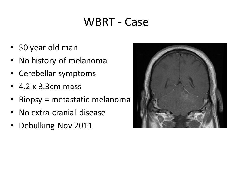 WBRT - Case 50 year old man No history of melanoma Cerebellar symptoms 4.2 x 3.3cm mass Biopsy = metastatic melanoma No extra-cranial disease Debulkin