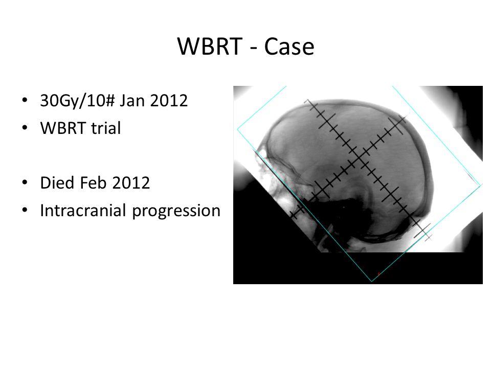 WBRT - Case 30Gy/10# Jan 2012 WBRT trial Died Feb 2012 Intracranial progression