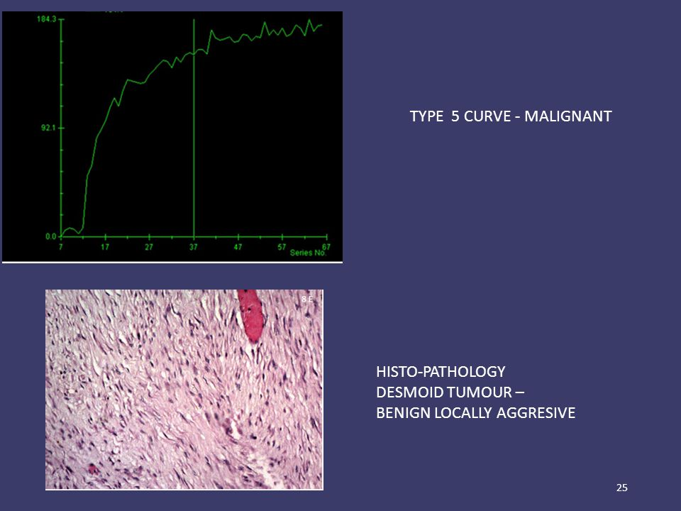 25 HISTO-PATHOLOGY DESMOID TUMOUR – BENIGN LOCALLY AGGRESIVE TYPE 5 CURVE - MALIGNANT