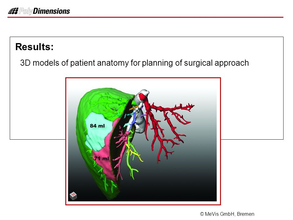 Results: 3D models of patient anatomy for planning of surgical approach © MeVis GmbH, Bremen