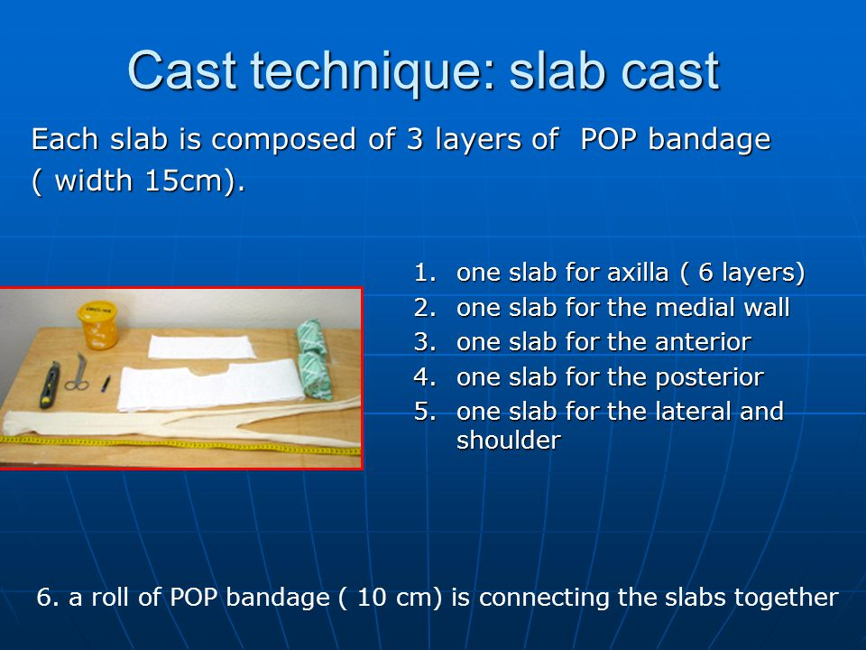 Cast technique: slab cast 1.one slab for axilla ( 6 layers) 2.one slab for the medial wall 3.one slab for the anterior 4.one slab for the posterior 5.