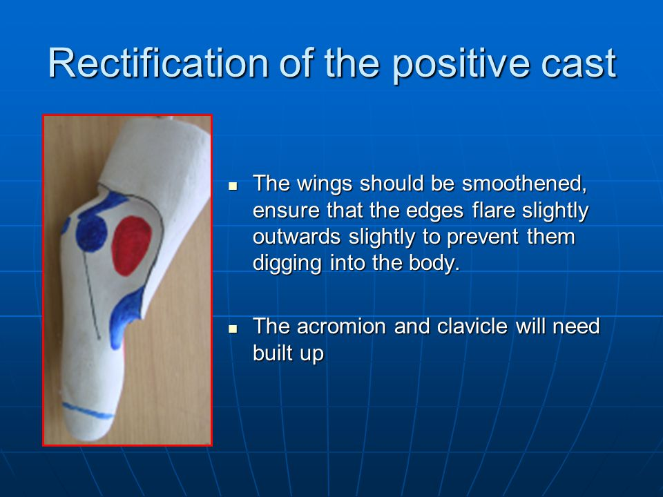 Rectification of the positive cast The wings should be smoothened, ensure that the edges flare slightly outwards slightly to prevent them digging into