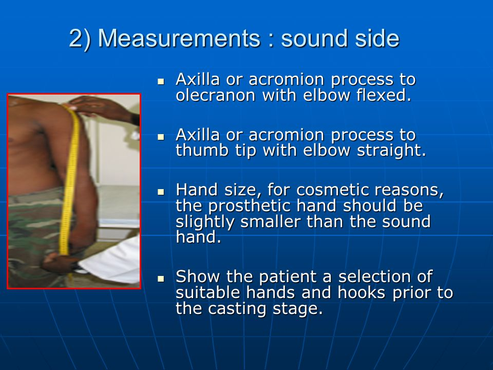 2) Measurements : sound side Axilla or acromion process to olecranon with elbow flexed. Axilla or acromion process to olecranon with elbow flexed. Axi