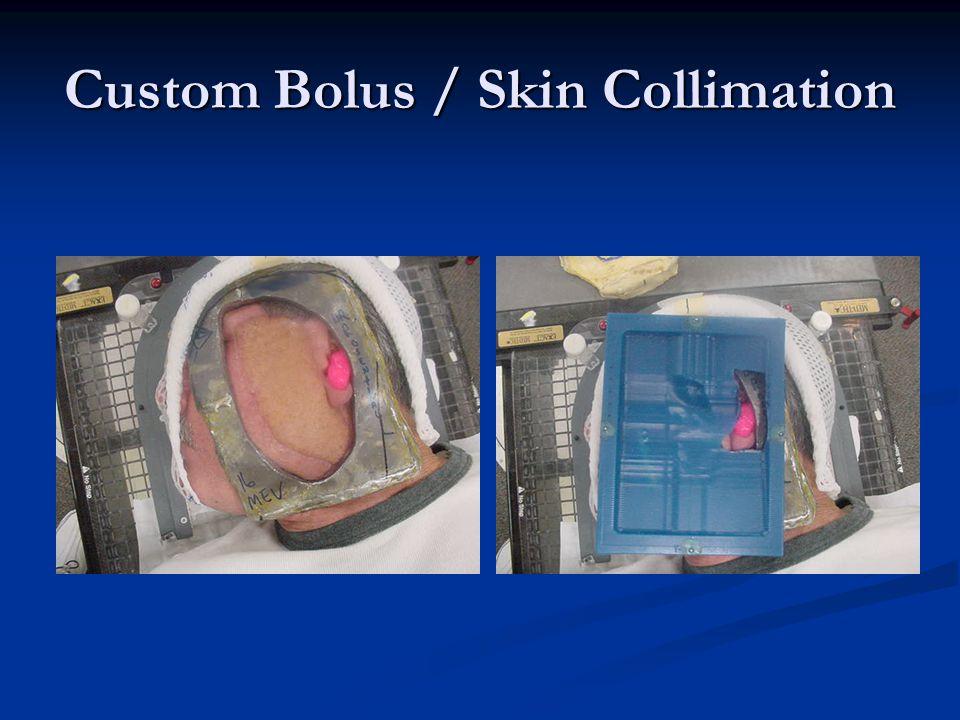 Custom Bolus / Skin Collimation