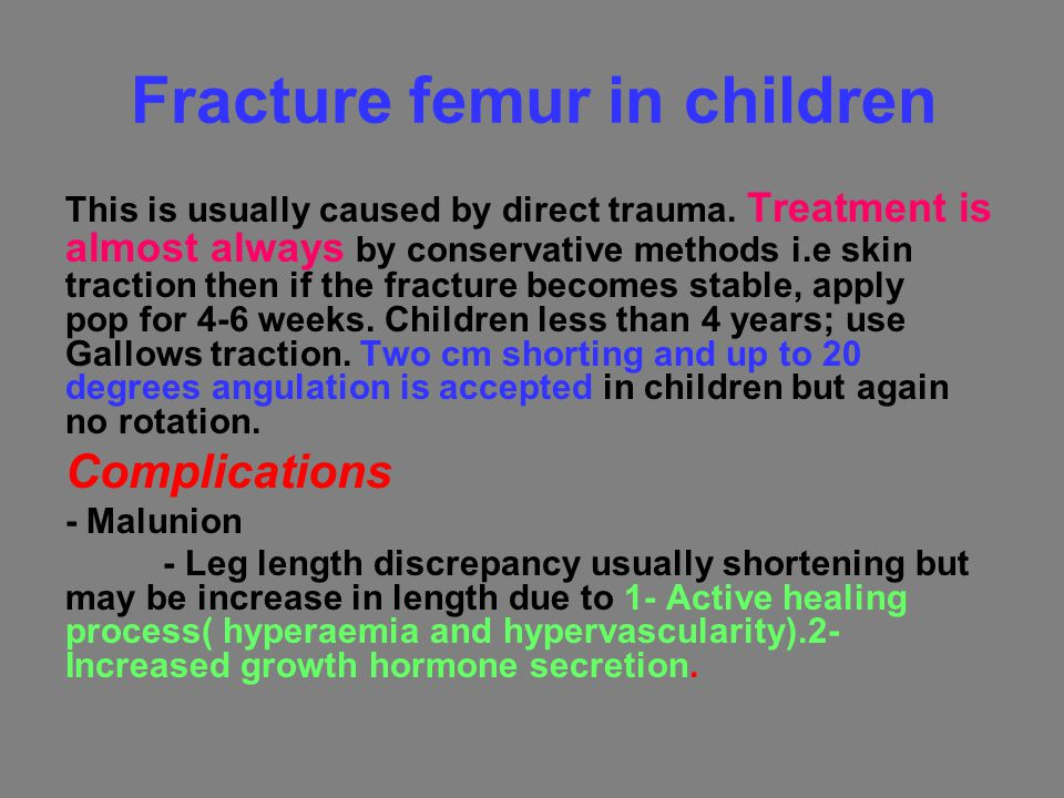 Fracture femur in children This is usually caused by direct trauma. Treatment is almost always by conservative methods i.e skin traction then if the f