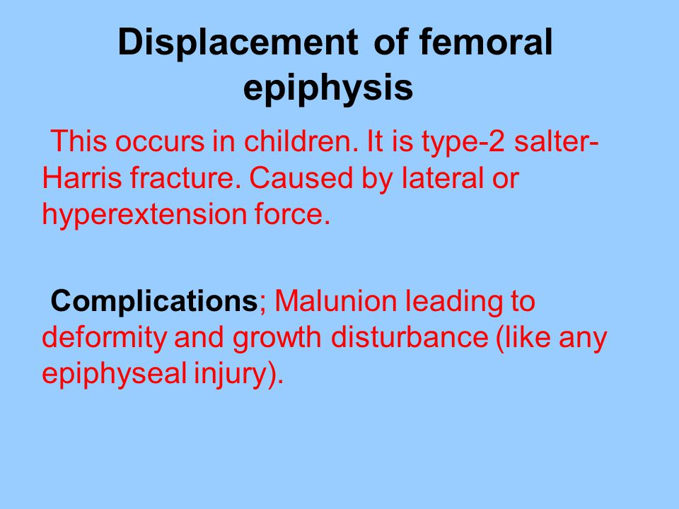 Displacement of femoral epiphysis This occurs in children. It is type-2 salter- Harris fracture. Caused by lateral or hyperextension force. Complicati
