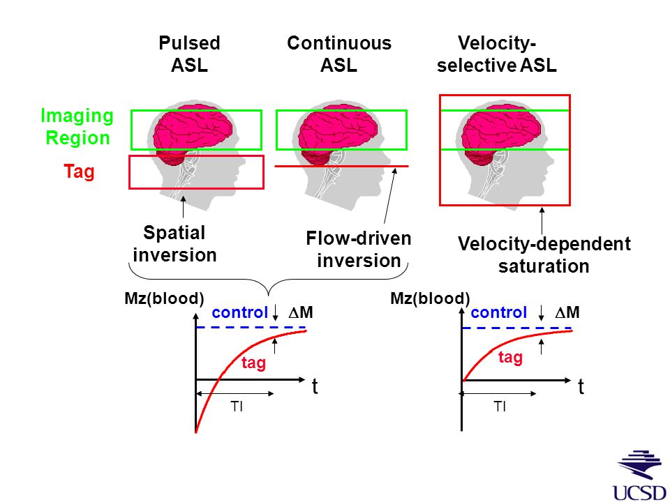 Arterial spin labeling (ASL) Acquire image Tag by Magnetic Inversion 1: Control 2: Control - Tag =  M  CBF