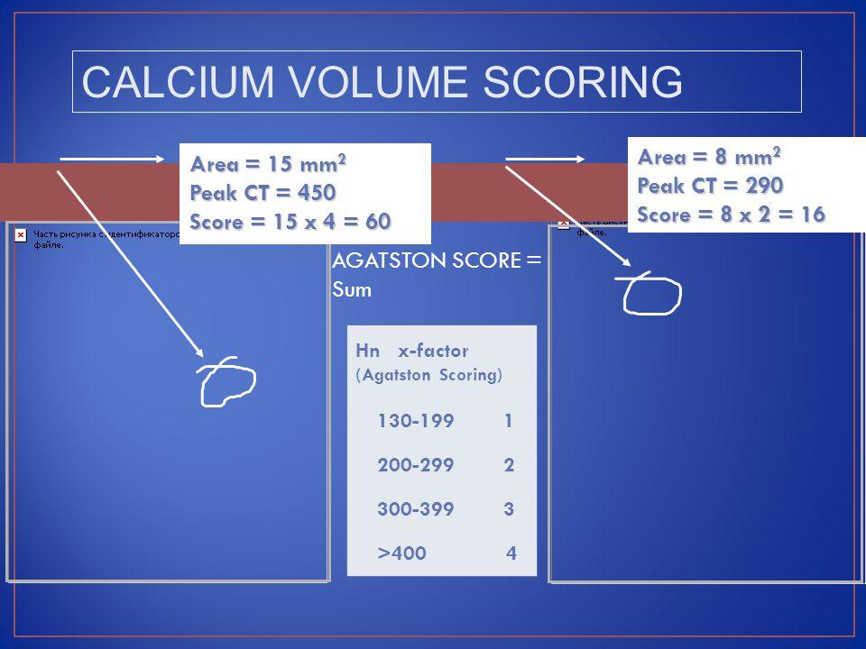 Hn x-factor (Agatston Scoring) 130-199 1 200-299 2 300-399 3 >400 4 Area = 15 mm 2 Peak CT = 450 Score = 15 x 4 = 60 Area = 8 mm 2 Peak CT = 290 Score