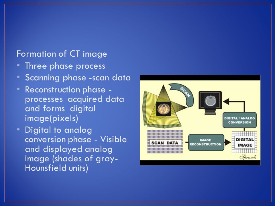 Formation of CT image Three phase process Scanning phase -scan data Reconstruction phase - processes acquired data and forms digital image(pixels) Dig