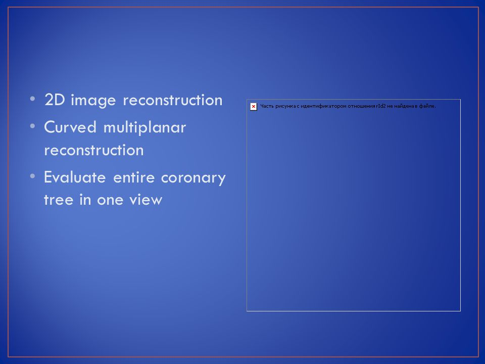 2D image reconstruction Curved multiplanar reconstruction Evaluate entire coronary tree in one view