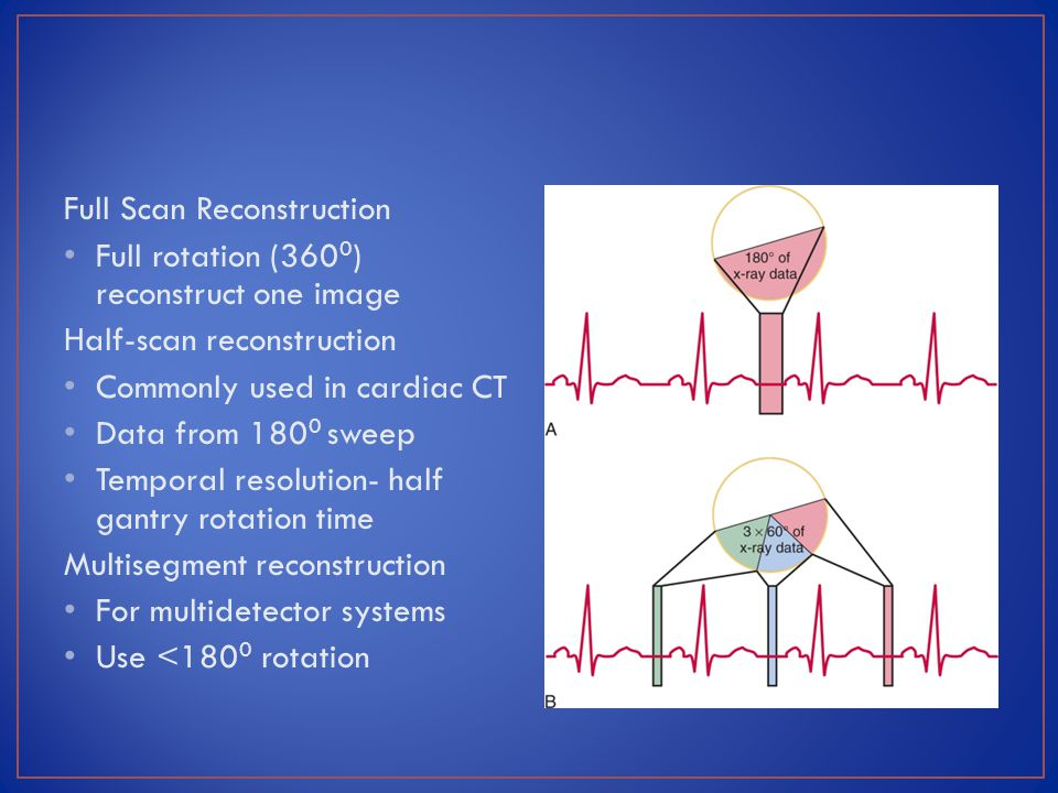 Full Scan Reconstruction Full rotation (360 0 ) reconstruct one image Half-scan reconstruction Commonly used in cardiac CT Data from 180 0 sweep Tempo