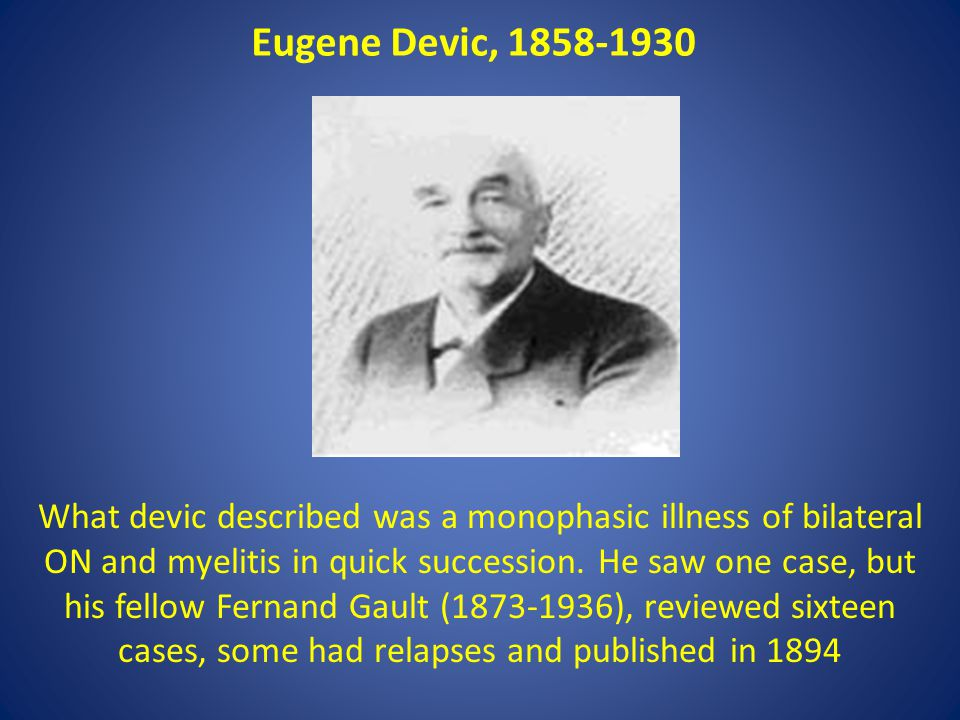 Eugene Devic, 1858-1930 What devic described was a monophasic illness of bilateral ON and myelitis in quick succession.