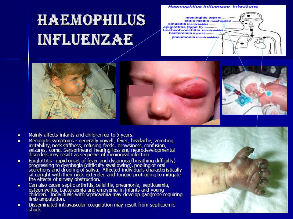 Haemophilus influenzae Mainly affects infants and children up to 5 years. Mainly affects infants and children up to 5 years. Meningitis symptoms - gen