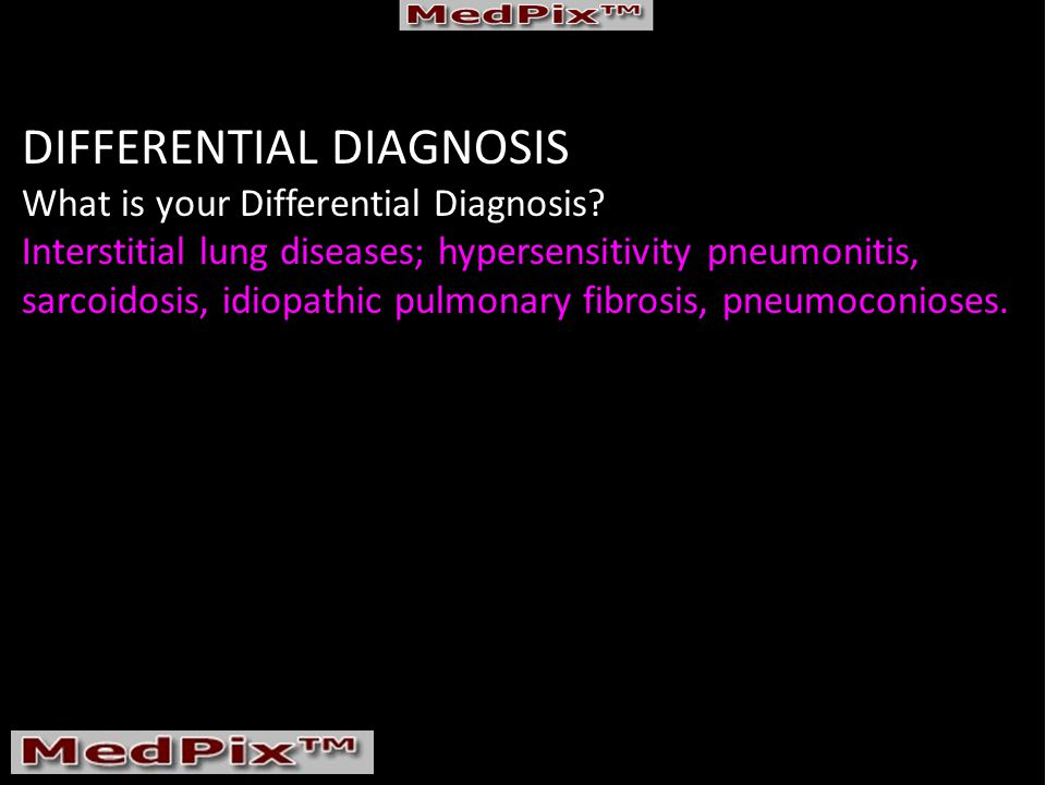 DIFFERENTIAL DIAGNOSIS What is your Differential Diagnosis.