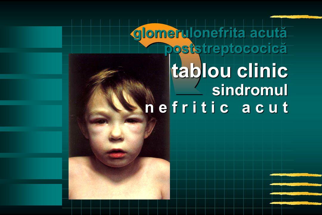 glomerulonefrita acută poststreptococică tablou clinic sindromul n e f r i t i c a c u t
