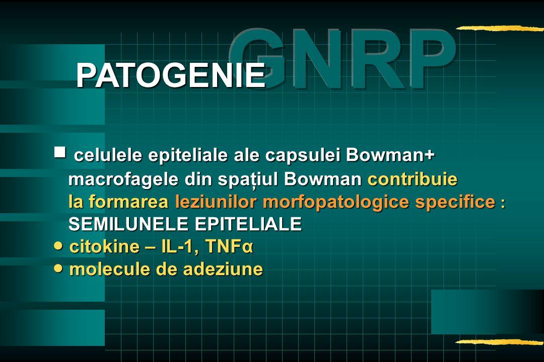 ■ celulele epiteliale ale capsulei Bowman+ macrofagele din spaţiul Bowman contribuie macrofagele din spaţiul Bowman contribuie la formarea leziunilor morfopatologice specifice : la formarea leziunilor morfopatologice specifice : SEMILUNELE EPITELIALE SEMILUNELE EPITELIALE ● citokine – IL-1, TNFα ● molecule de adeziune PATOGENIE