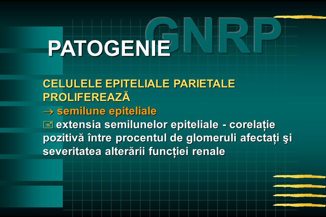 CELULELE EPITELIALE PARIETALE PROLIFEREAZĂ  semilune epiteliale  extensia semilunelor epiteliale - corelaţie pozitivă între procentul de glomeruli afectaţi şi severitatea alterării funcţiei renale PATOGENIE