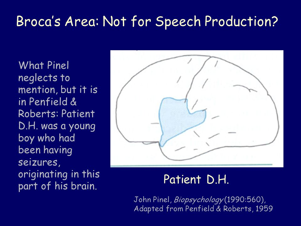 Broca's Area: Not for Speech Production.