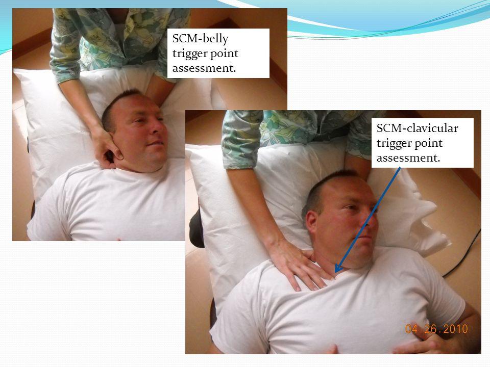 SCM-belly trigger point assessment. SCM-clavicular trigger point assessment.