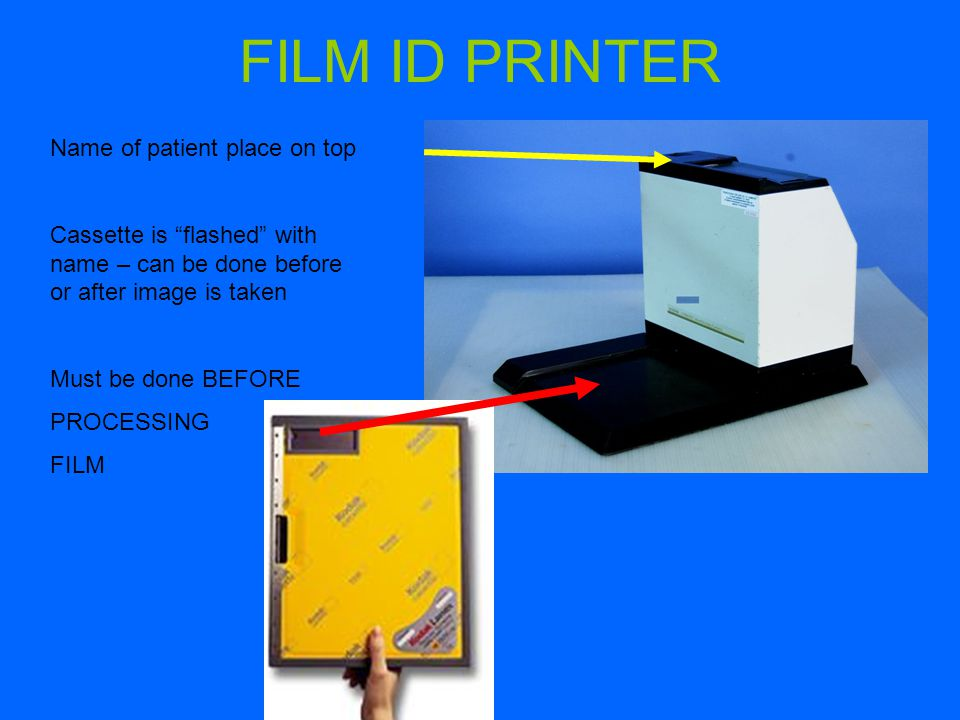 FILM ID PRINTER Name of patient place on top Cassette is flashed with name – can be done before or after image is taken Must be done BEFORE PROCESSING FILM