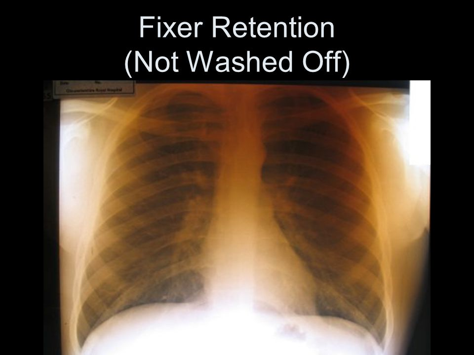 Fixer Retention (Not Washed Off)