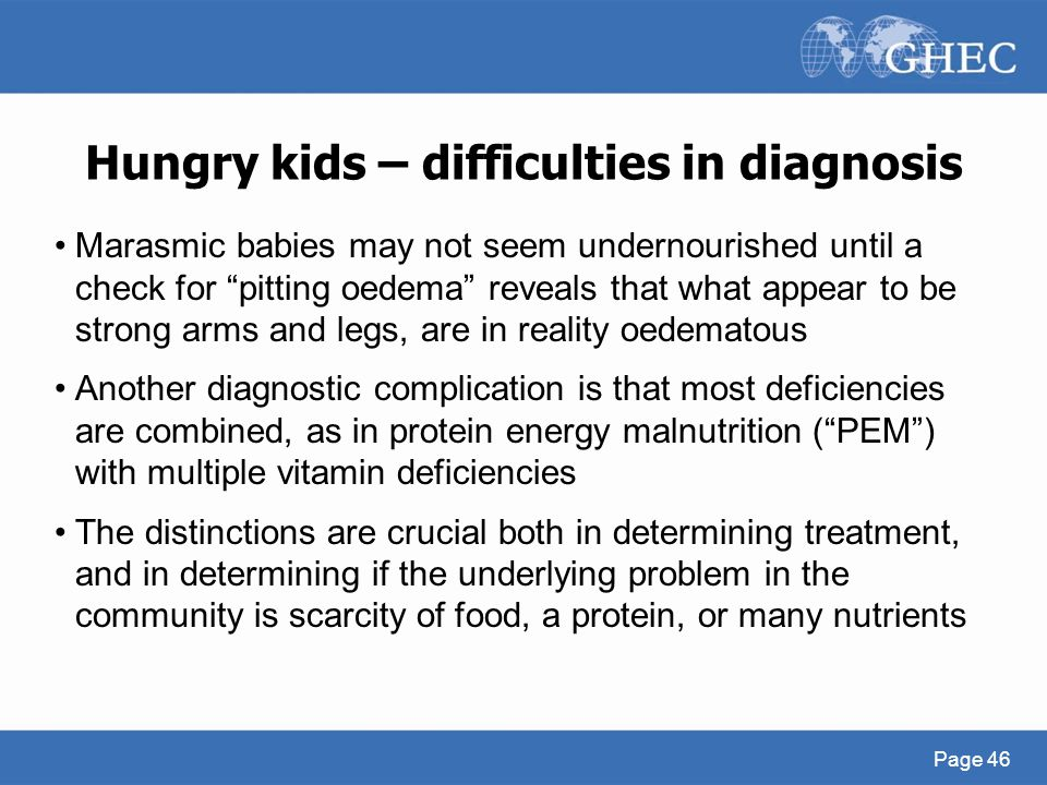 "Hungry kids – difficulties in diagnosis Page 46 Marasmic babies may not seem undernourished until a check for ""pitting oedema"" reveals that what appea"