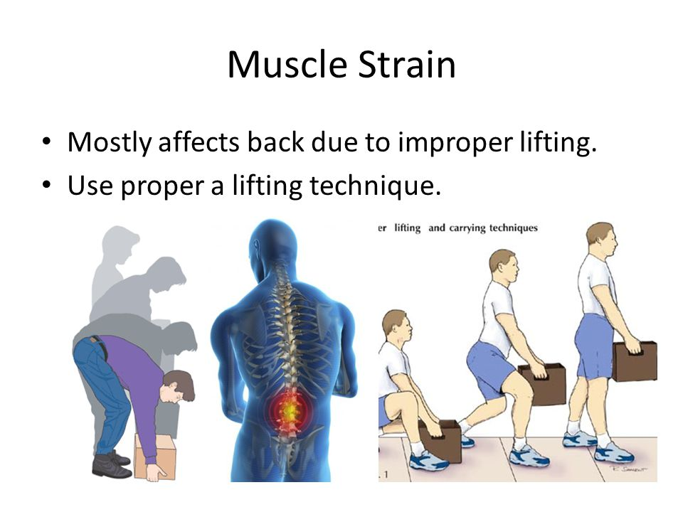 Muscle Strain Mostly affects back due to improper lifting. Use proper a lifting technique.