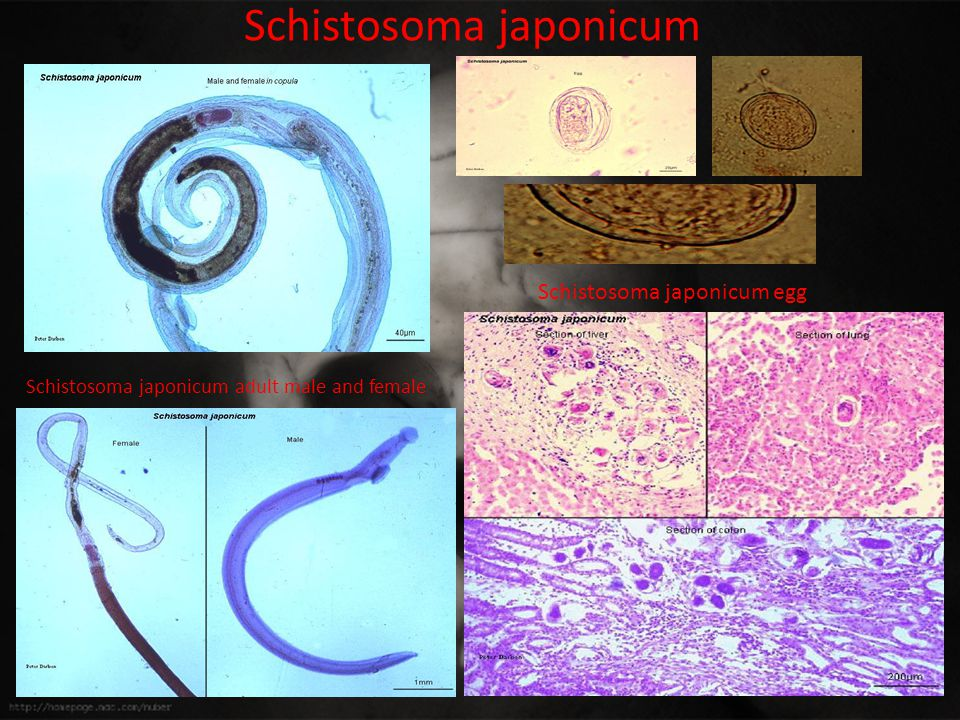 Schistosoma japonicum Schistosoma japonicum adult male and female Schistosoma japonicum egg
