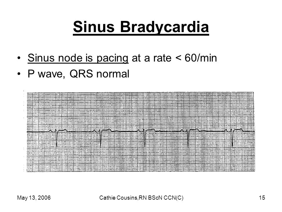 May 13, 2006Cathie Cousins,RN BScN CCN(C)15 Sinus Bradycardia Sinus node is pacing at a rate < 60/min P wave, QRS normal