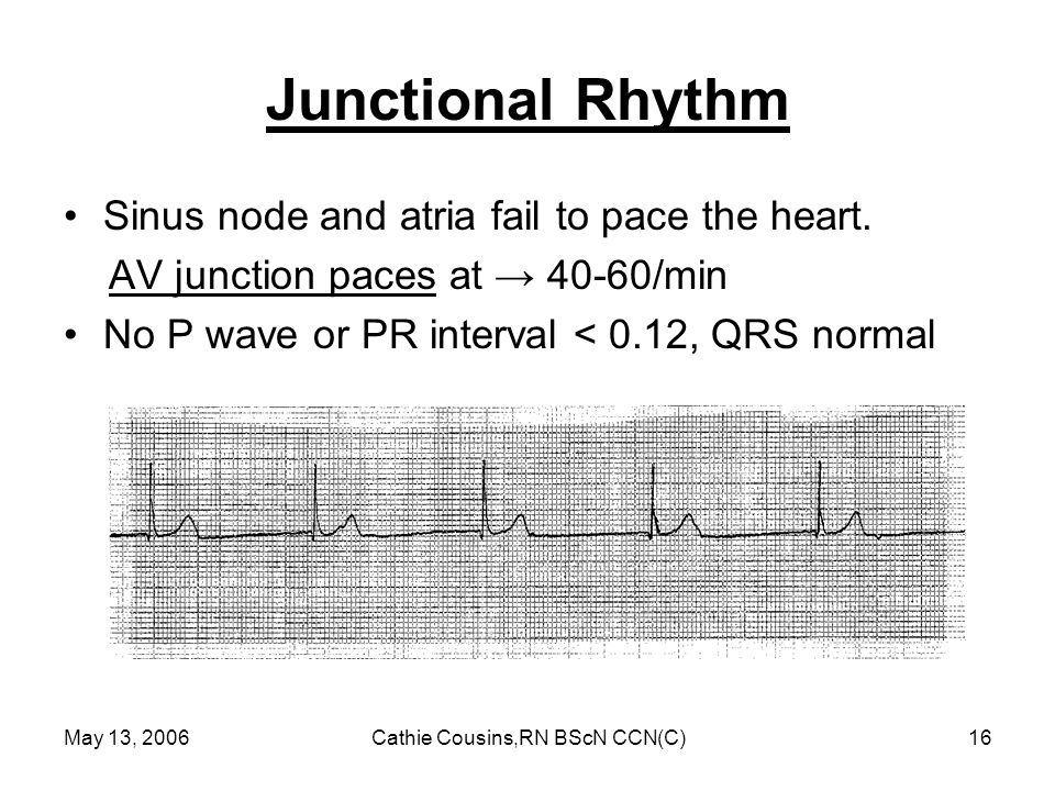 May 13, 2006Cathie Cousins,RN BScN CCN(C)16 Junctional Rhythm Sinus node and atria fail to pace the heart. AV junction paces at → 40-60/min No P wave