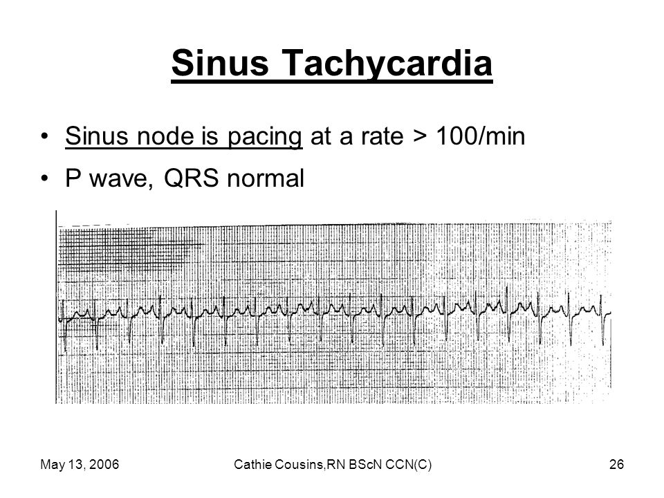 May 13, 2006Cathie Cousins,RN BScN CCN(C)26 Sinus Tachycardia Sinus node is pacing at a rate > 100/min P wave, QRS normal