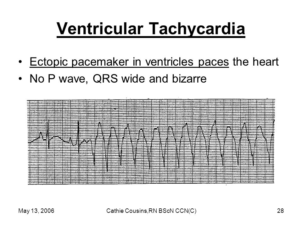 May 13, 2006Cathie Cousins,RN BScN CCN(C)28 Ventricular Tachycardia Ectopic pacemaker in ventricles paces the heart No P wave, QRS wide and bizarre