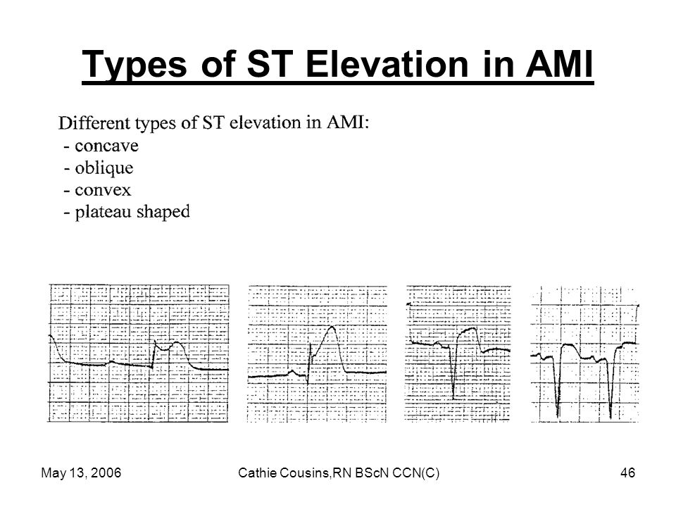 May 13, 2006Cathie Cousins,RN BScN CCN(C)46 Types of ST Elevation in AMI