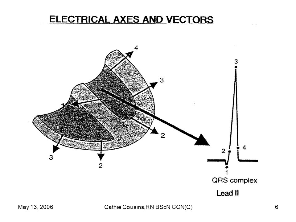 May 13, 2006Cathie Cousins,RN BScN CCN(C)27 Superventricular Tachycardia Ectopic focus in atria or AV junction paces the heart or Abnormal conduction thru AV node or Accessory pathway P wave or no P wave, QRS narrow or wide, rate > 150/min