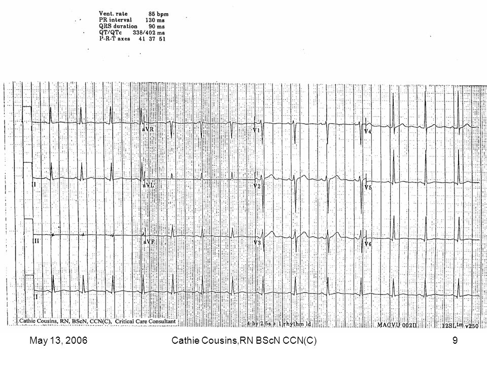 May 13, 2006Cathie Cousins,RN BScN CCN(C)60 Abnormal T Waves in AMI Normal Heart - positive T wave Subendocardial Ischemia - symmetrically positive tall, peaked T wave