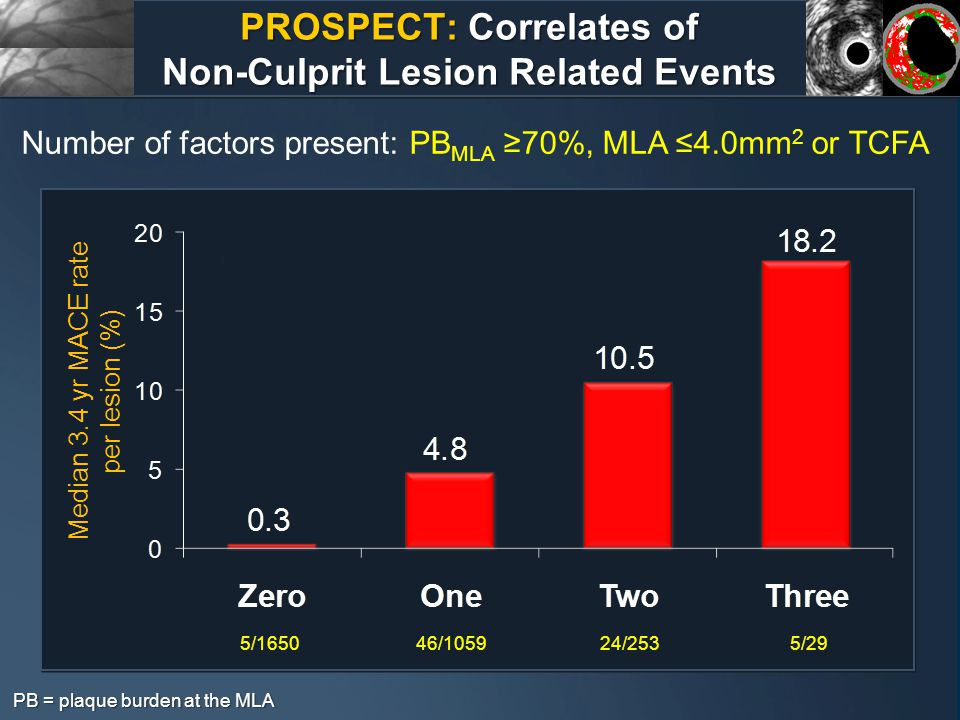PROSPECT: Correlates of Non-Culprit Lesion Related Events PB = plaque burden at the MLA Number of factors present: PB MLA ≥70%, MLA ≤4.0mm 2 or TCFA Median 3.4 yr MACE rate per lesion (%) 5/165046/105924/2535/29