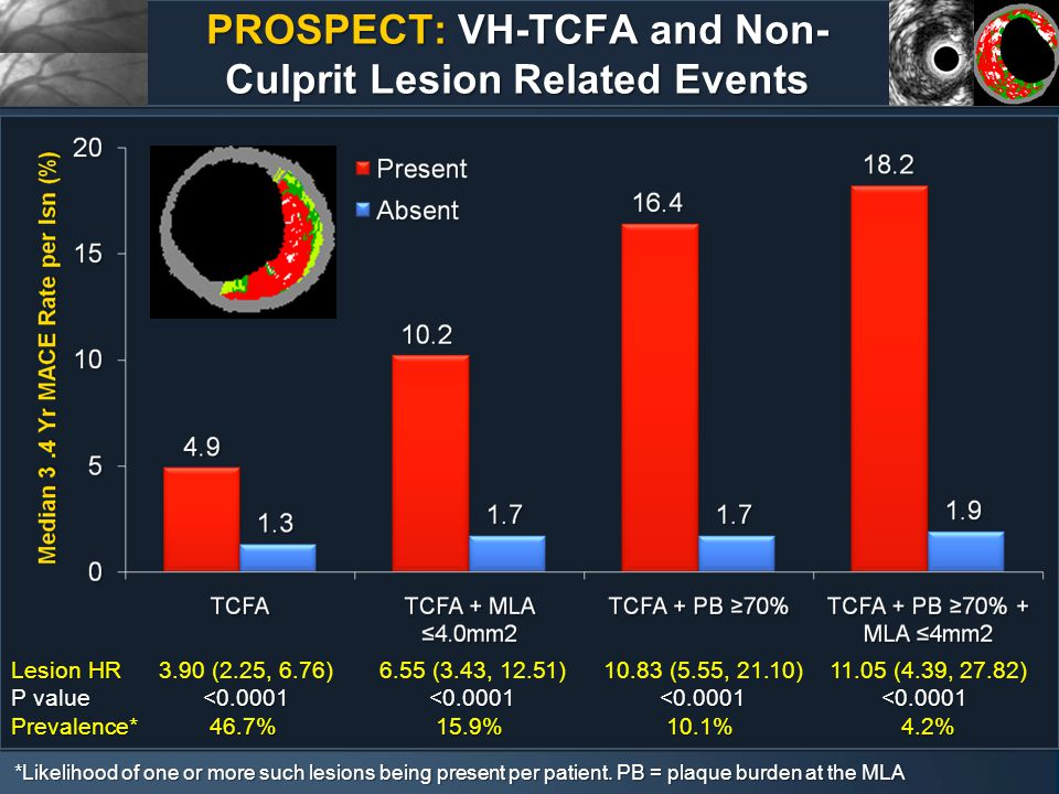 PROSPECT: VH-TCFA and Non- Culprit Lesion Related Events Lesion HR Lesion HR 3.90 (2.25, 6.76) 6.55 (3.43, 12.51) 10.83 (5.55, 21.10) 11.05 (4.39, 27.82) P value <0.0001 <0.0001 <0.0001<0.0001 P value <0.0001 <0.0001 <0.0001<0.0001 Prevalence*46.7%15.9%10.1% 4.2% Prevalence*46.7%15.9%10.1% 4.2% *Likelihood of one or more such lesions being present per patient.