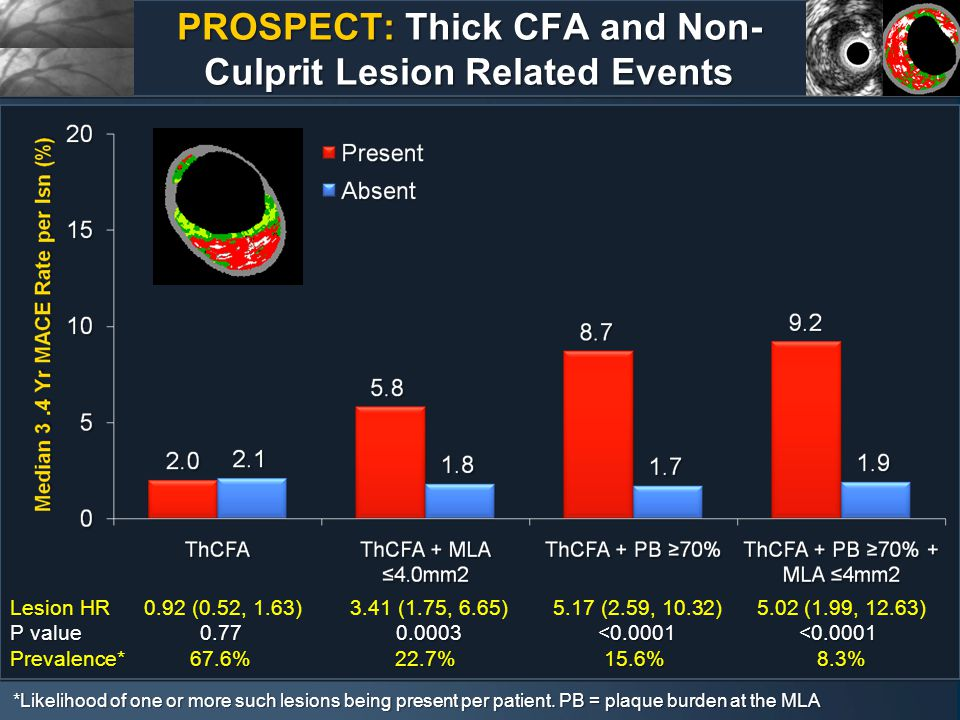 PROSPECT: Thick CFA and Non- Culprit Lesion Related Events Lesion HR Lesion HR 0.92 (0.52, 1.63) 3.41 (1.75, 6.65) 5.17 (2.59, 10.32) 5.02 (1.99, 12.63) P value0.77 0.0003 <0.0001<0.0001 P value0.77 0.0003 <0.0001<0.0001 Prevalence*67.6%22.7%15.6% 8.3% Prevalence*67.6%22.7%15.6% 8.3% *Likelihood of one or more such lesions being present per patient.