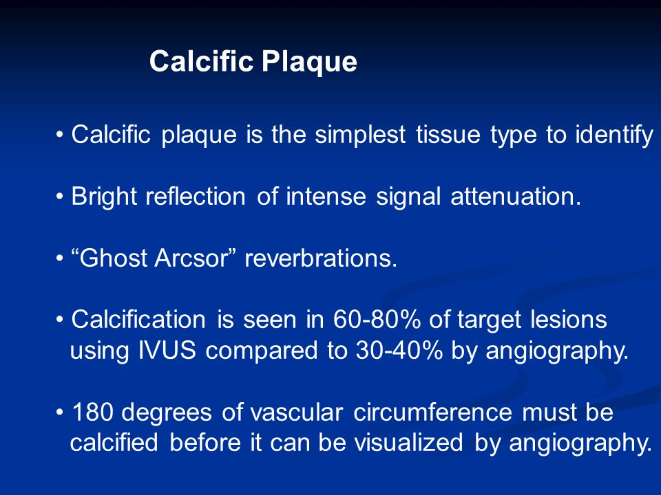 Calcific Plaque Calcific plaque is the simplest tissue type to identify Bright reflection of intense signal attenuation.
