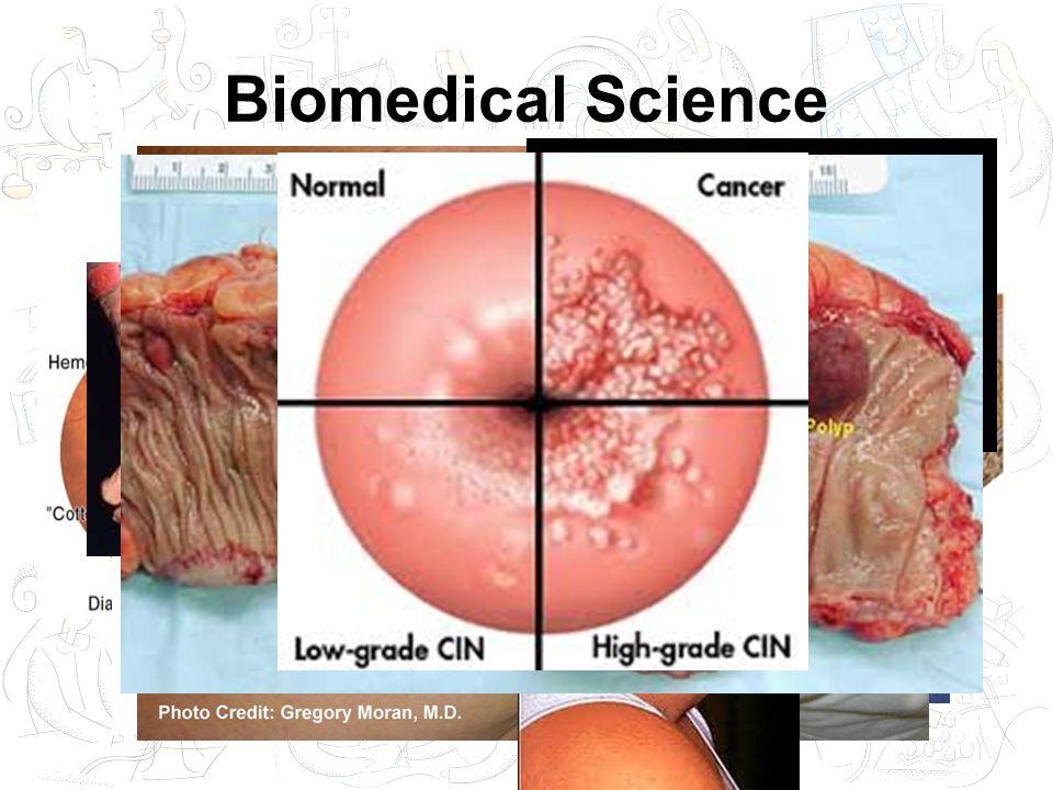 Biomedical Science Diseases –Clinical Biochemistry –Haematology –Microbiology –Immunology –Histopathology –Cytopathology