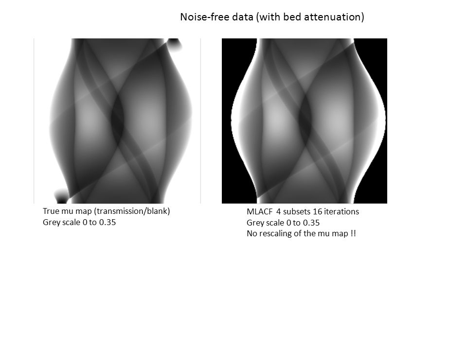 Noise-free data (with bed attenuation) MLACF 4 subsets 16 iterations Grey scale 0 to 0.35 No rescaling of the mu map !! True mu map (transmission/blan